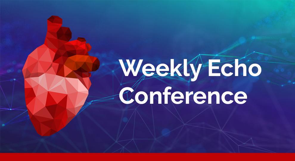 ECHO RSS